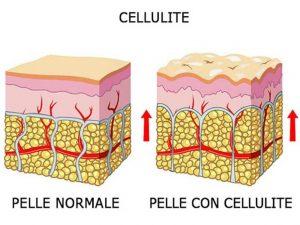 Eliminare-la-cellulite-Forever-Aloe-Vera